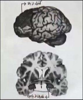 http://img.aftab.cc/news/95/self-controlling-brain.png